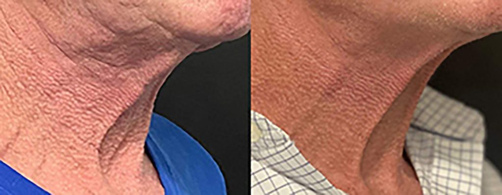Skin tightening and wrinkle reduction neck