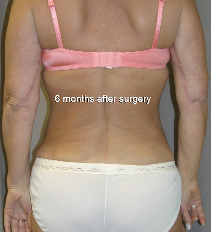 patient 2, 6 months, both arms, palms facing rear, back view