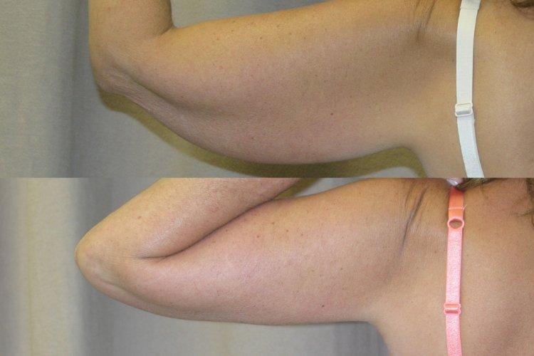 patient 2, left arm 6 months back