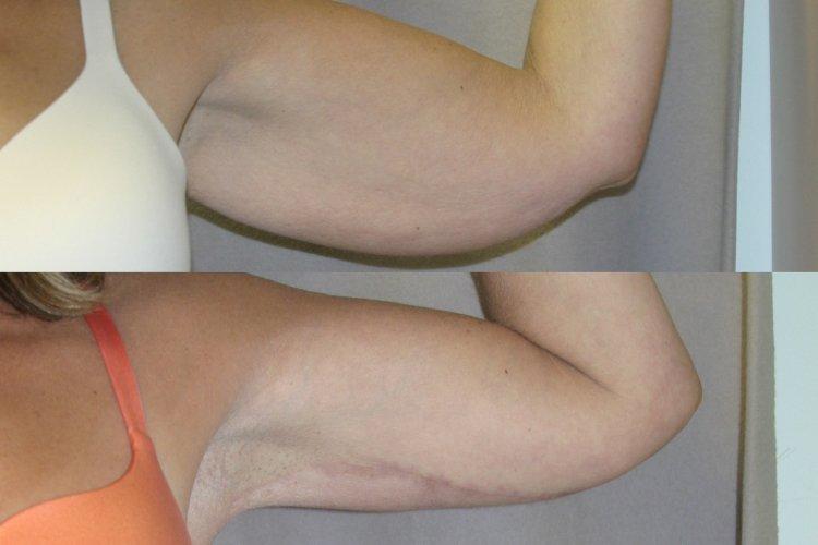patient 2, left arm 6 months front