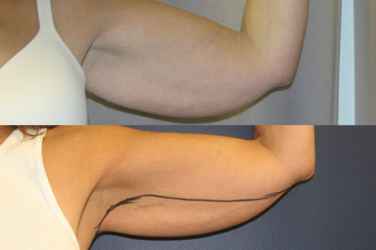 patient 2, left arm preoperative markings