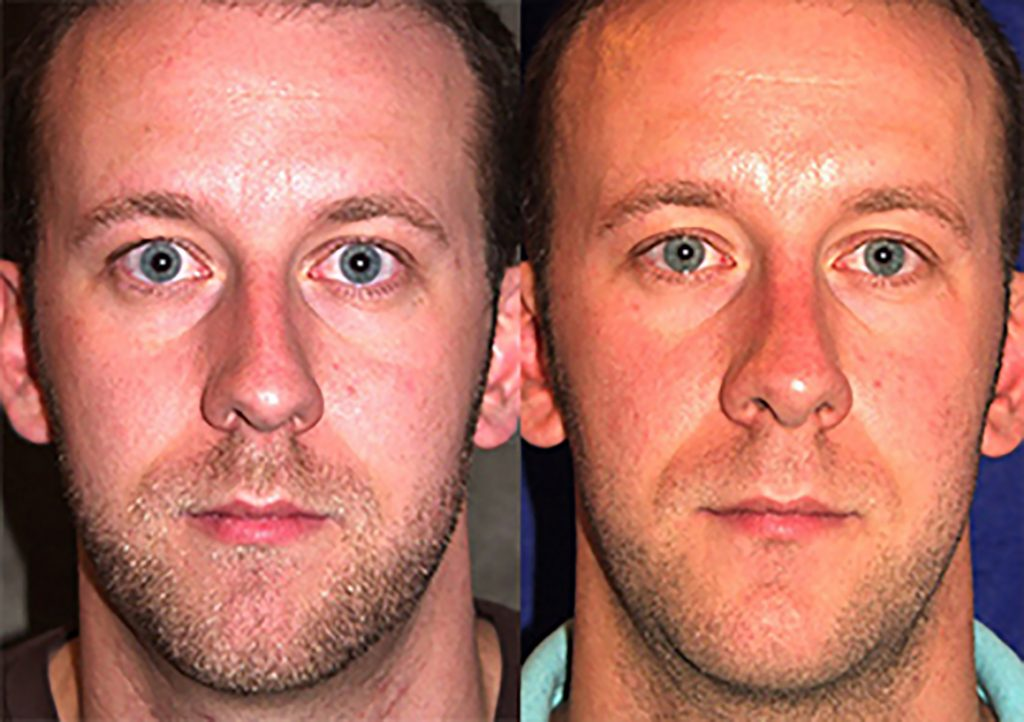 Rhinoplasty and chin implant one year after surgery