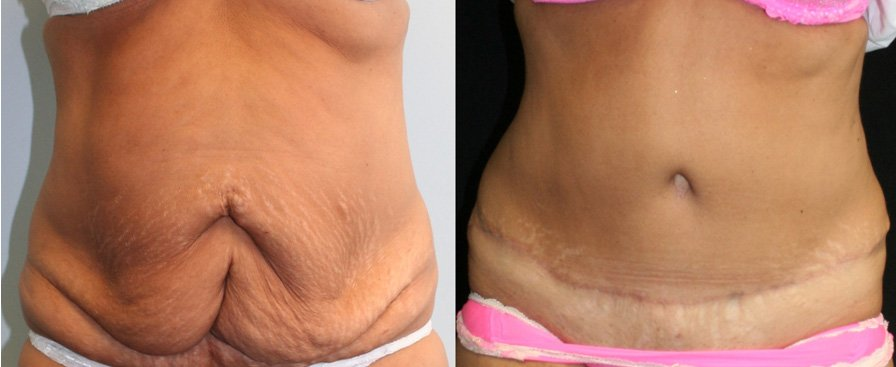 Tummy tuck with past abdominal surgery scars front view