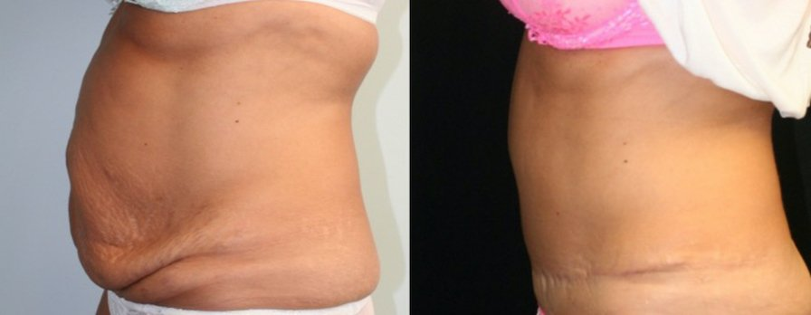 Tummy tuck with past abdominal surgery scars side view