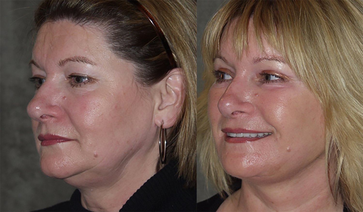 40-year-old facelift upper & lower eyelids one year oblique