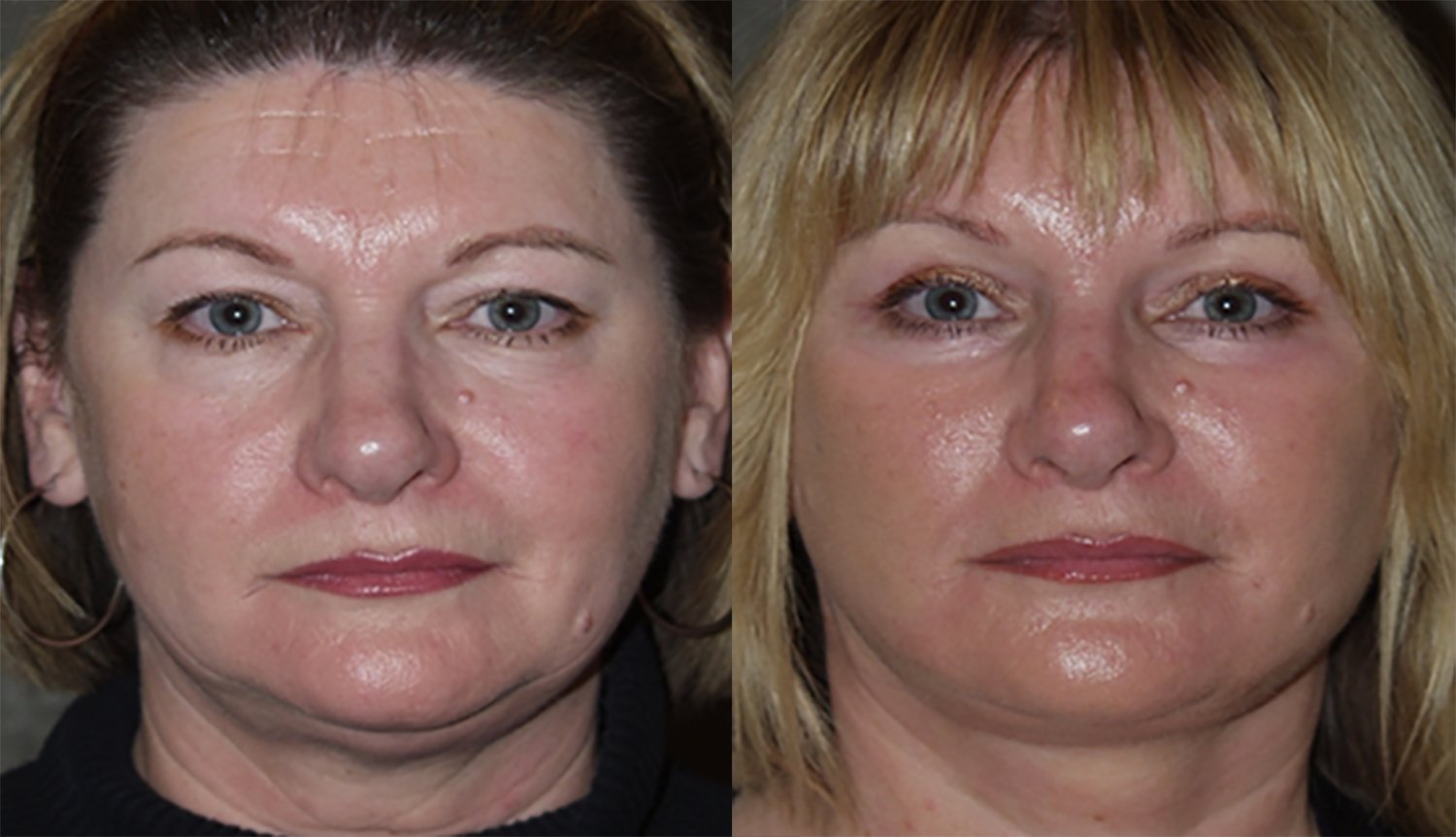 40-year-old facelift upper & lower eyelids one year
