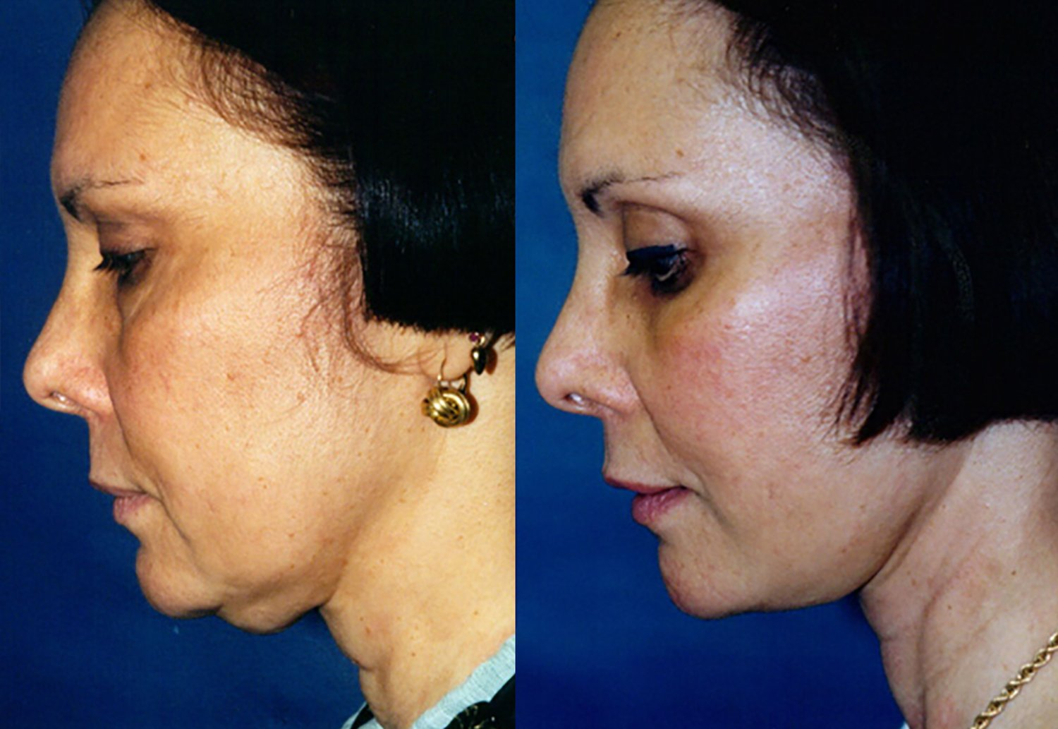 44-year-old facelift upper & lower eyelids one year side chin down