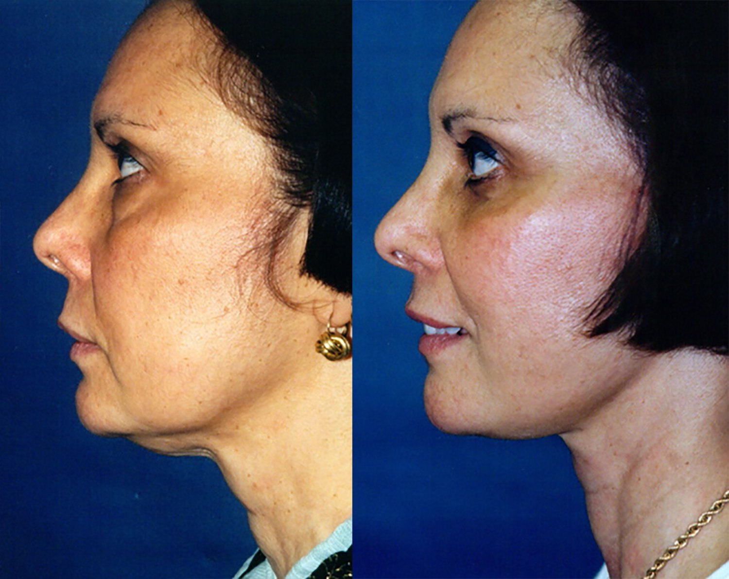 44-year-old facelift upper & lower eyelids one year side chin neutral