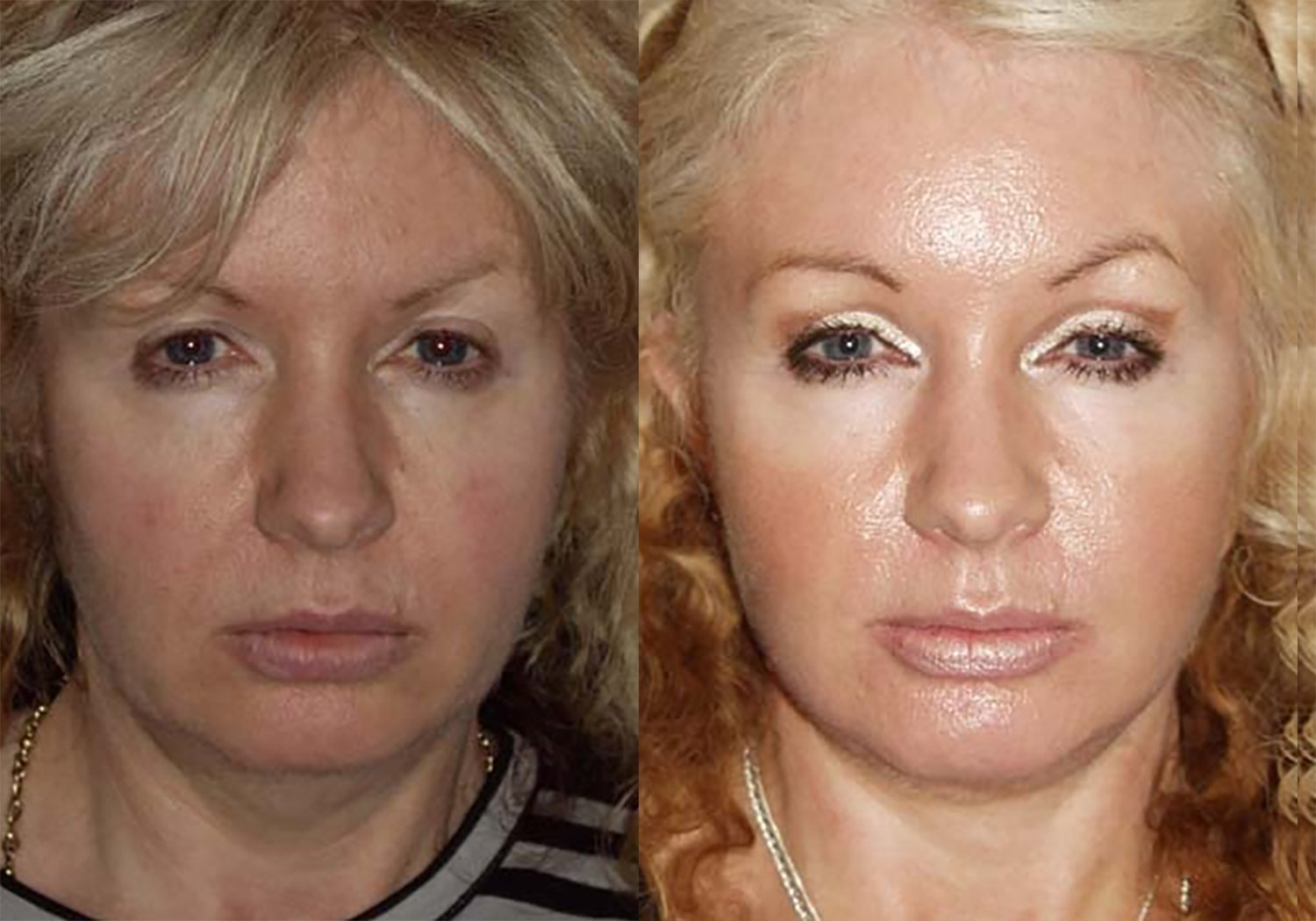 50-year-old facelift upper eyelids one year, prior facelift 10 yrs before, front