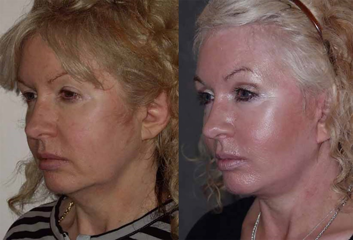 50-year-old facelift upper eyelids one year, prior facelift 10 yrs before, oblique