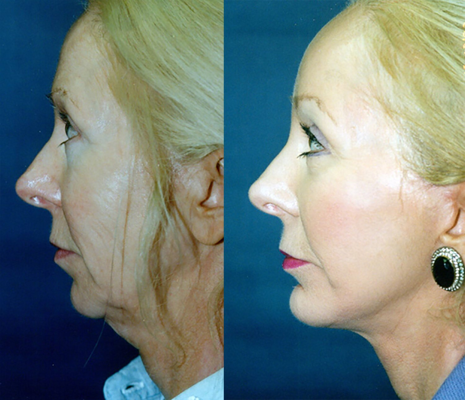 54-year-old facelift, upper & lower eyelids, perioral peel, chin implant one year side