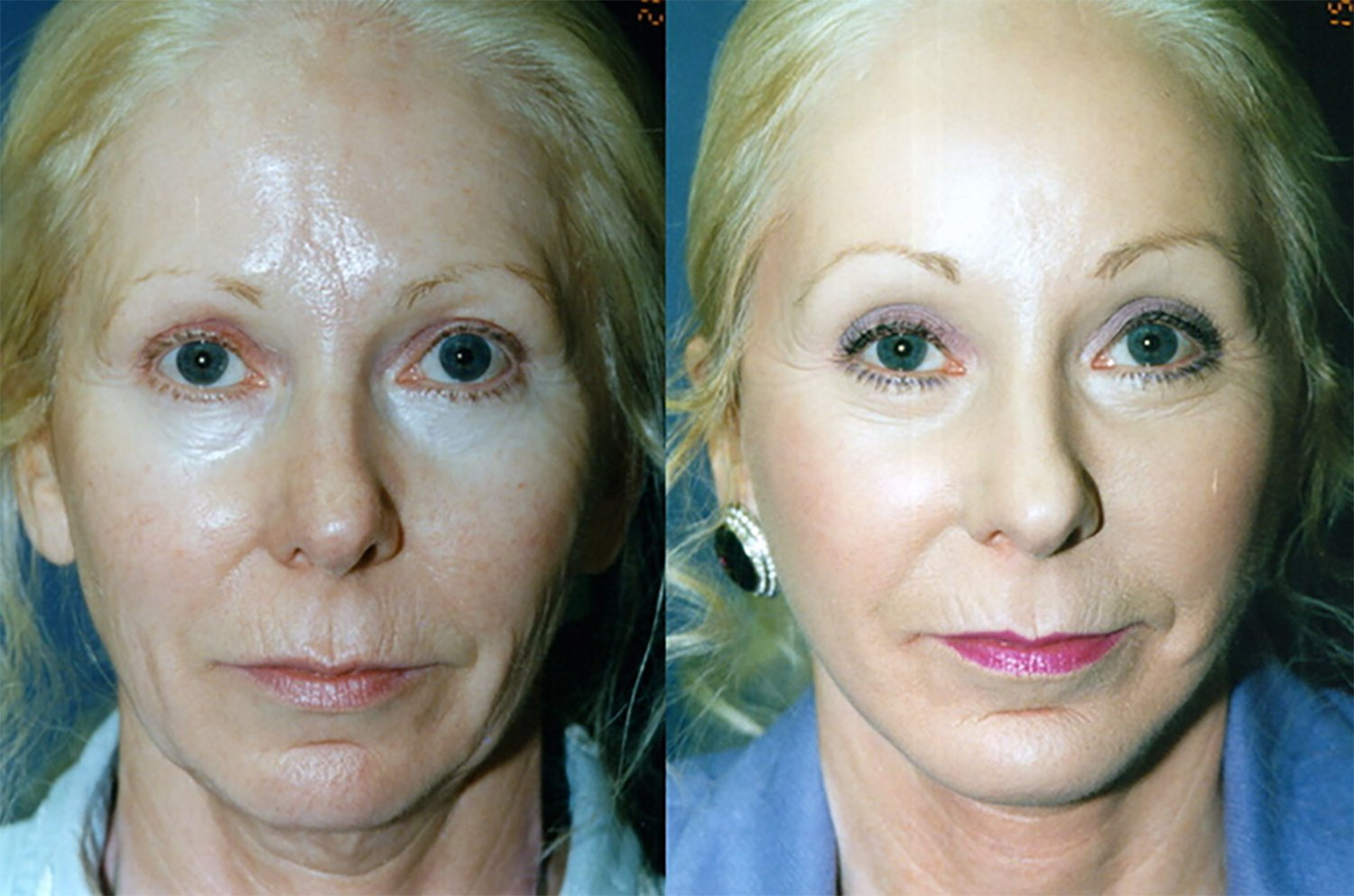 54-year-old facelift, upper & lower eyelids, perioral peel, chin implant one year