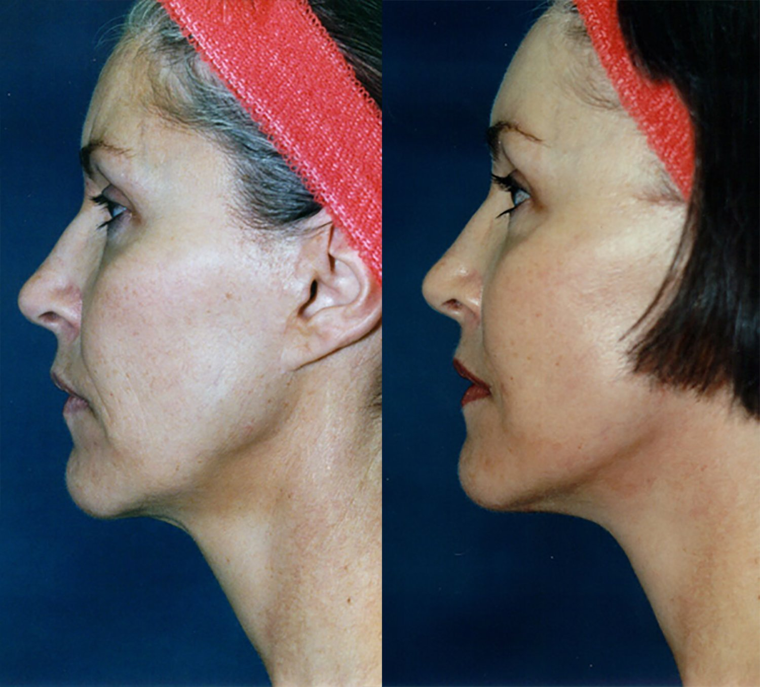 56-year-old facelift browlift 12 months side