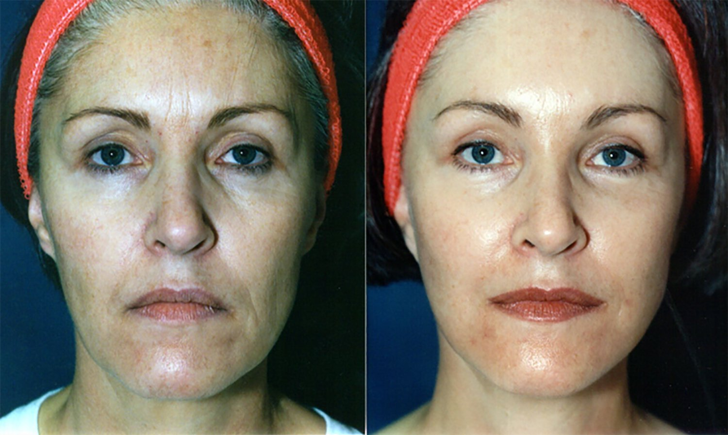56-year-old facelift browlift 12 months