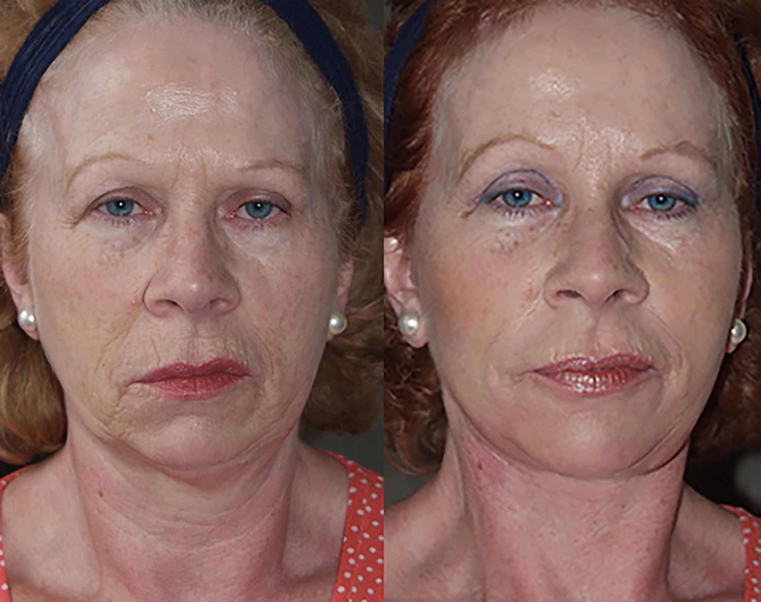 57-year-old facelift browlift upper & lower eyelids chin implant 6 months