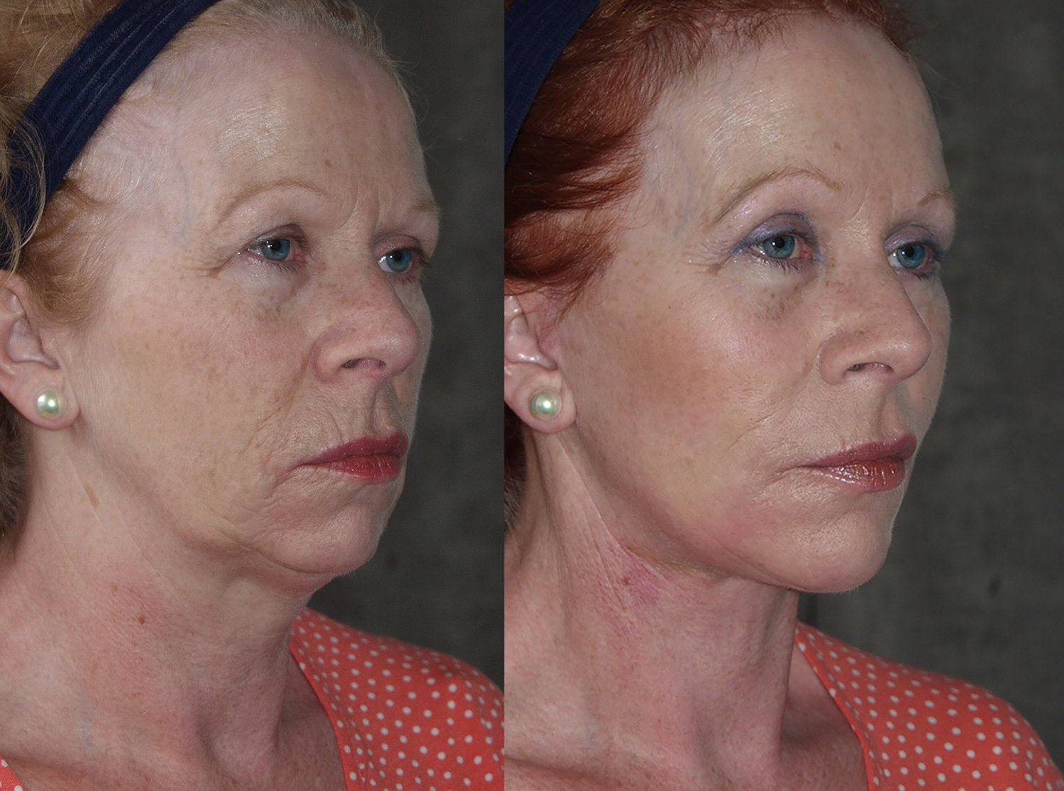 57-year-old facelift browlift upper & lower eyelids chin implant 6 months, oblique