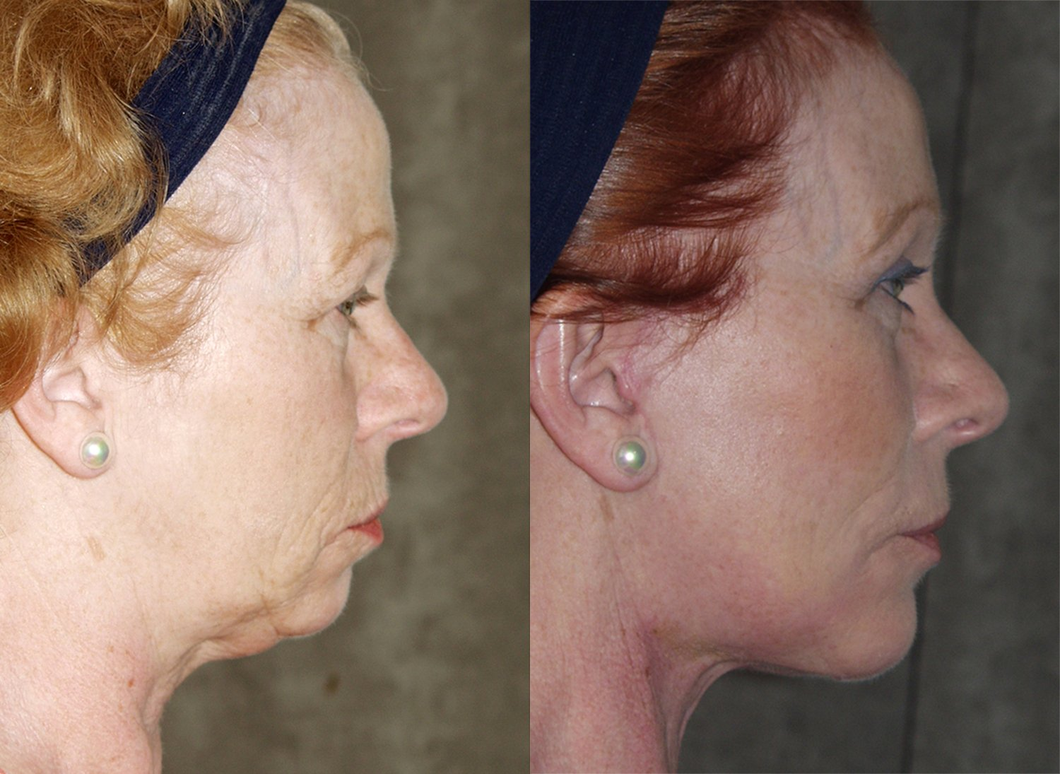 57-year-old facelift browlift upper & lower eyelids chin implant 6 months, side