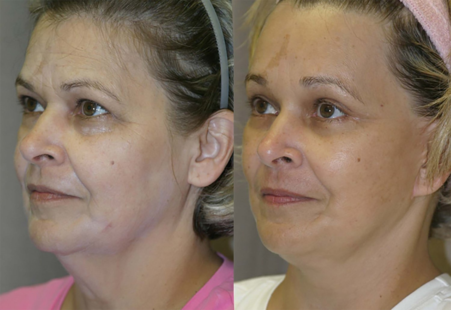 57 year-old, 9 month follow-up after facelift, lower external blepharoplasty with lateral canthoplasty, endoscopic browlift with endotine fixation oblique view