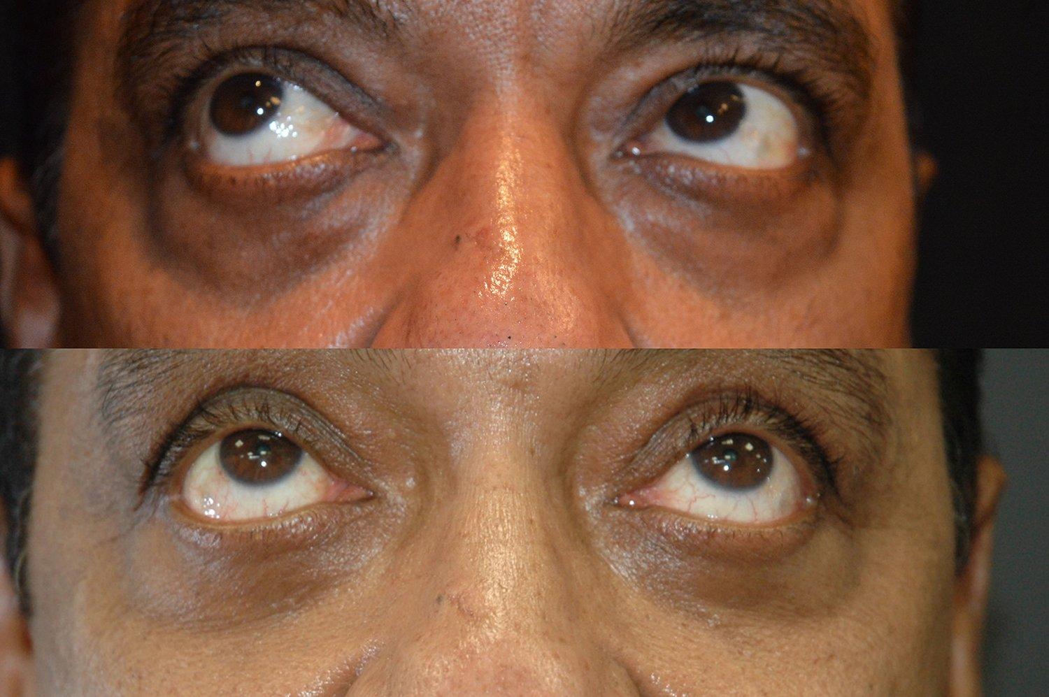 57-year-old lower eyelid transconjunctival bleph w. fat transposition, 2 years after surgery upward gaze