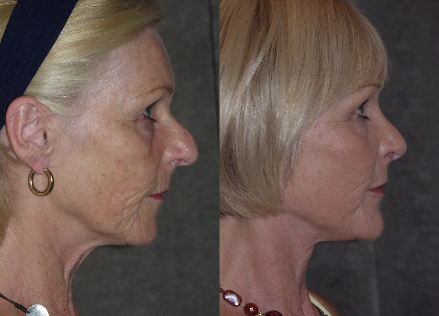 60-year-old facelift upper & lower eyelids, chin implant, rhinoplasty, peel lower eyelids & perioral, 4 months side