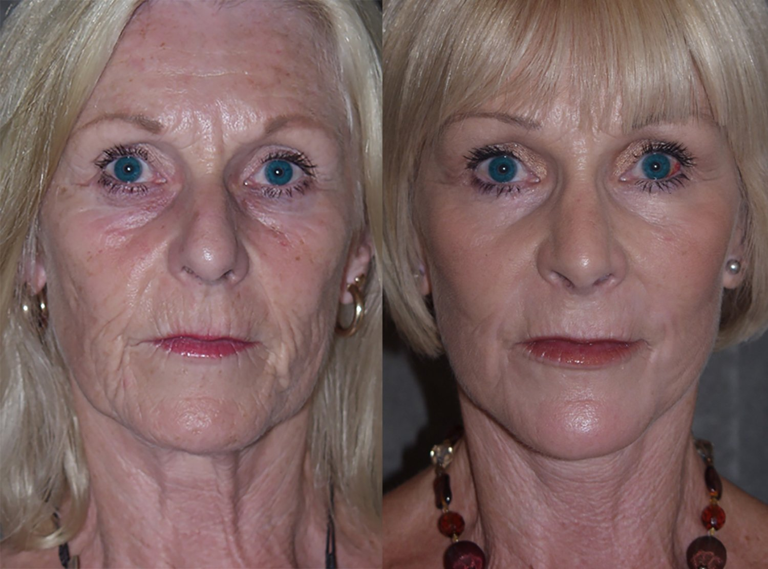 60-year-old facelift upper & lower eyelids, chin implant, rhinoplasty, peel lower eyelids & perioral, 4 months