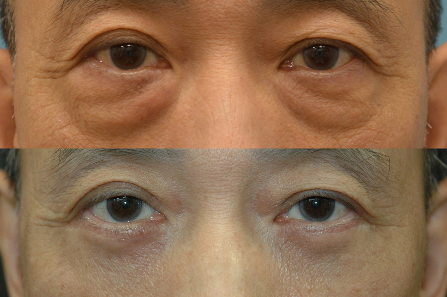 62-year-old lower eyelid transconjunctival bleph w. fat transposition . four months after surgery forward gaze