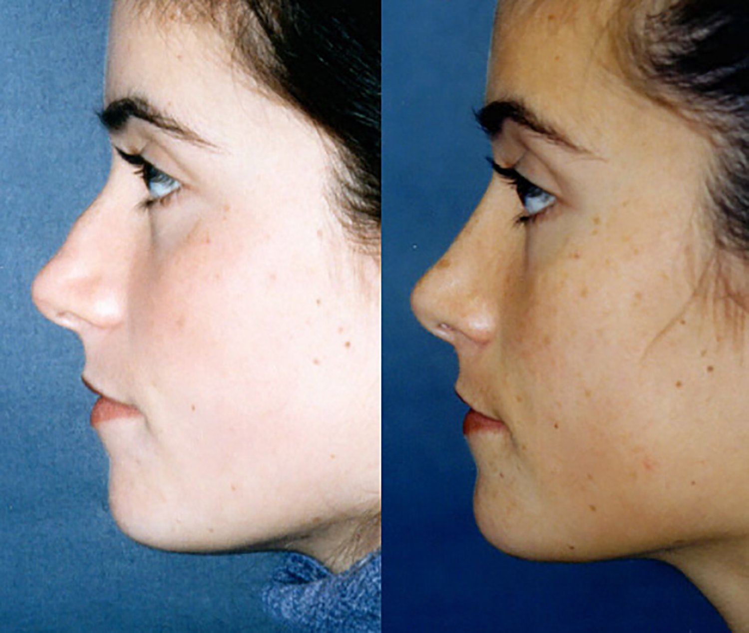 Broad nose with bump after bony fracture side