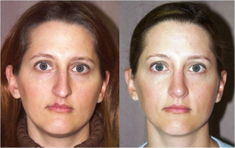 rhinoplasty, internal graft to nostril rim