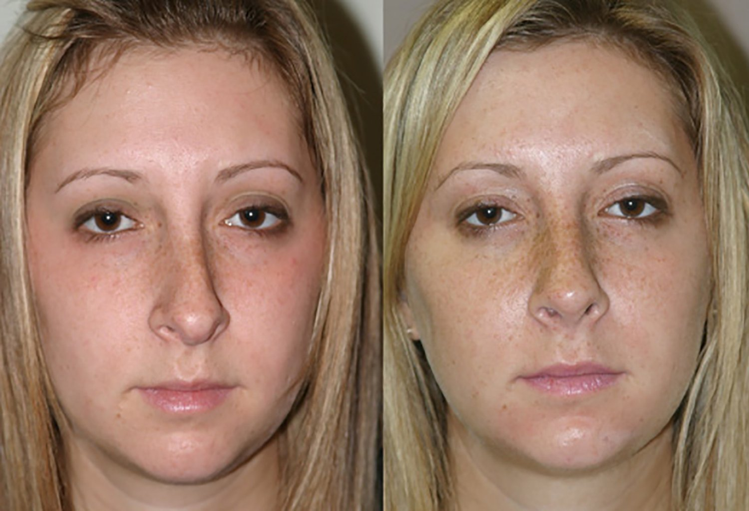 Revision rhinoplasty front