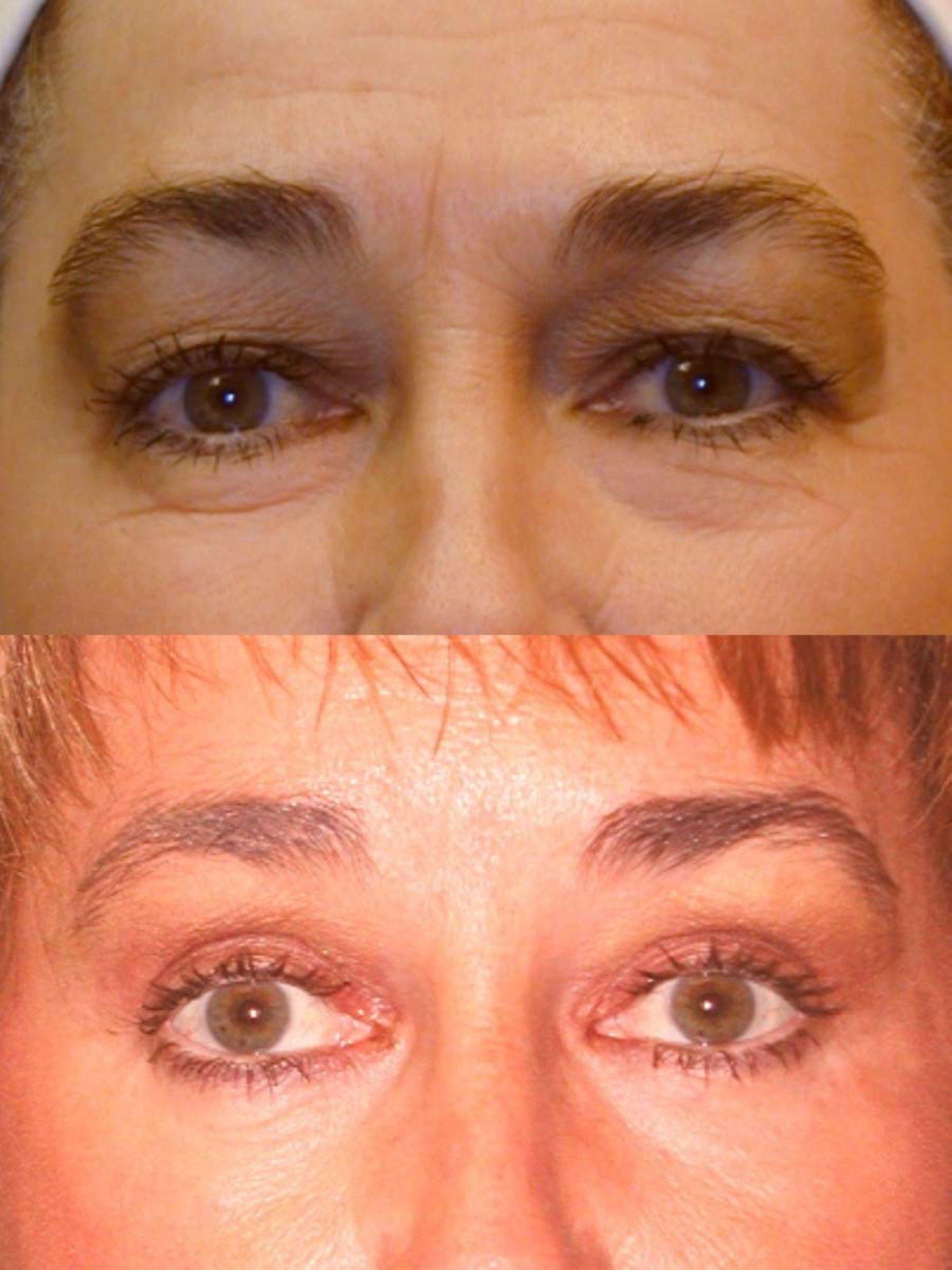 Upper and lower blepharoplasty, brow lift, facelift