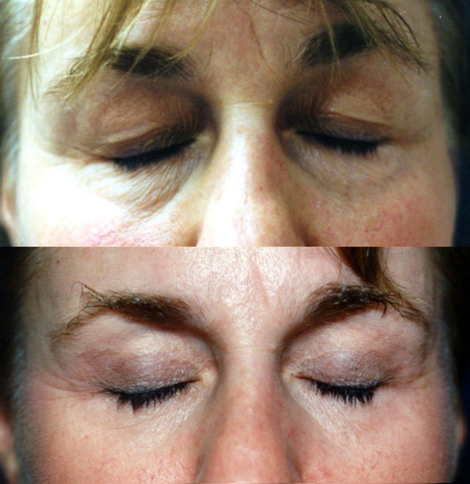 Upper and lower blepharoplasty, eyes closed