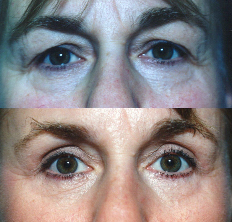 Upper and lower blepharoplasty, forward gaze