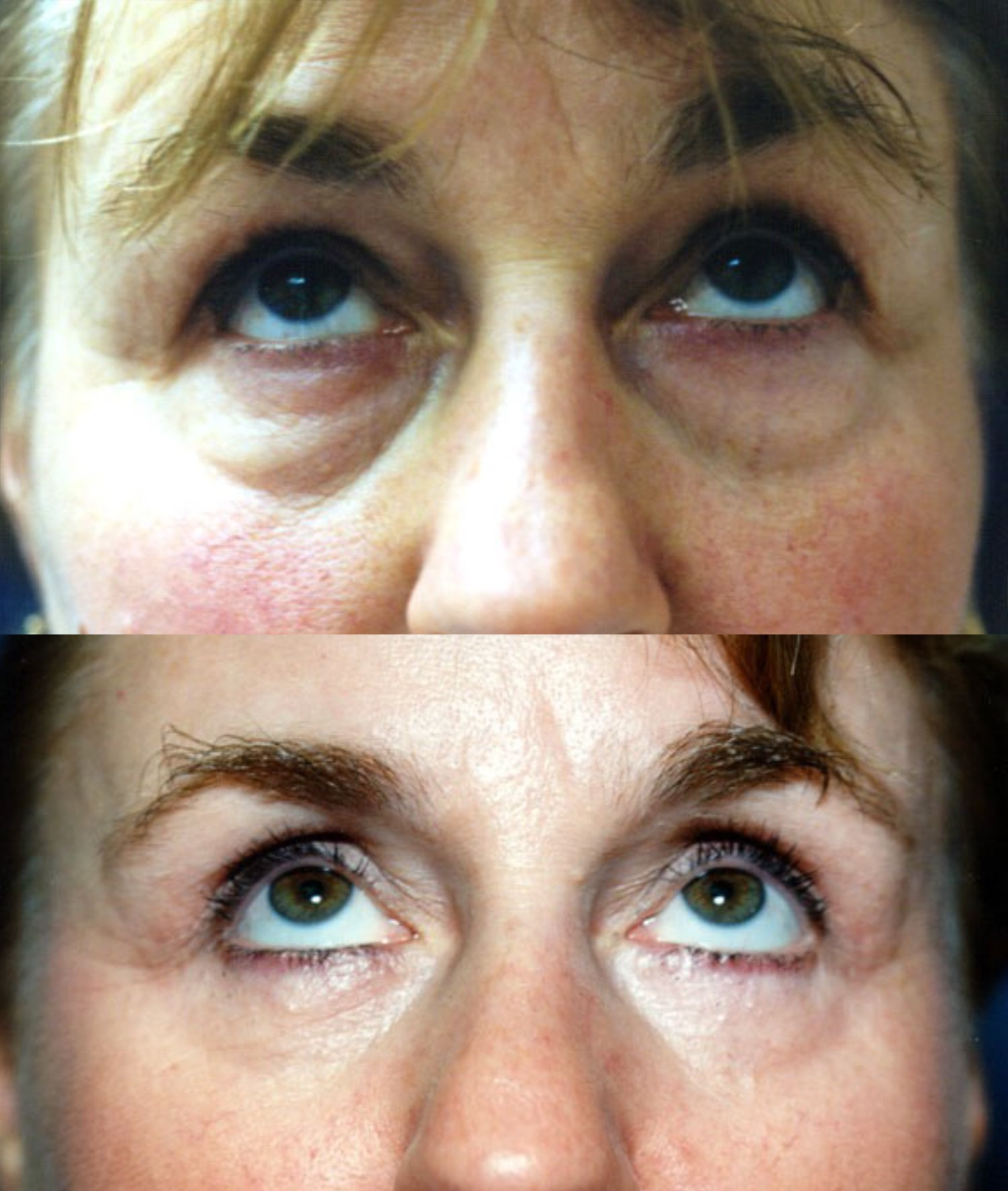 Upper and lower blepharoplasty, upward gaze