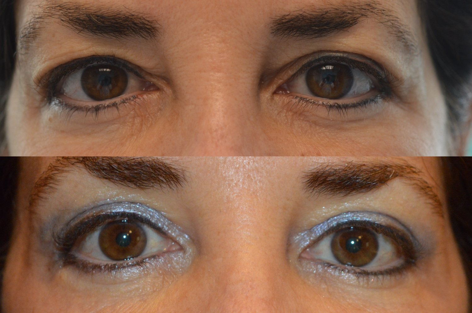 Upper blepharoplasty only under local anesthesia