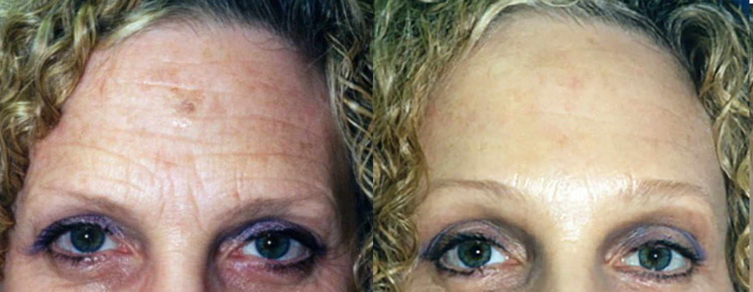 59 year-old face-lift browlift, laser lower eyelids and lateral canthoplasty