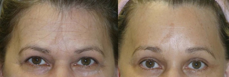 facelift, browlift, upper & lower eyelids