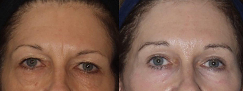 facelift, browlift, upper & lower eyelids, peel lower eyelids