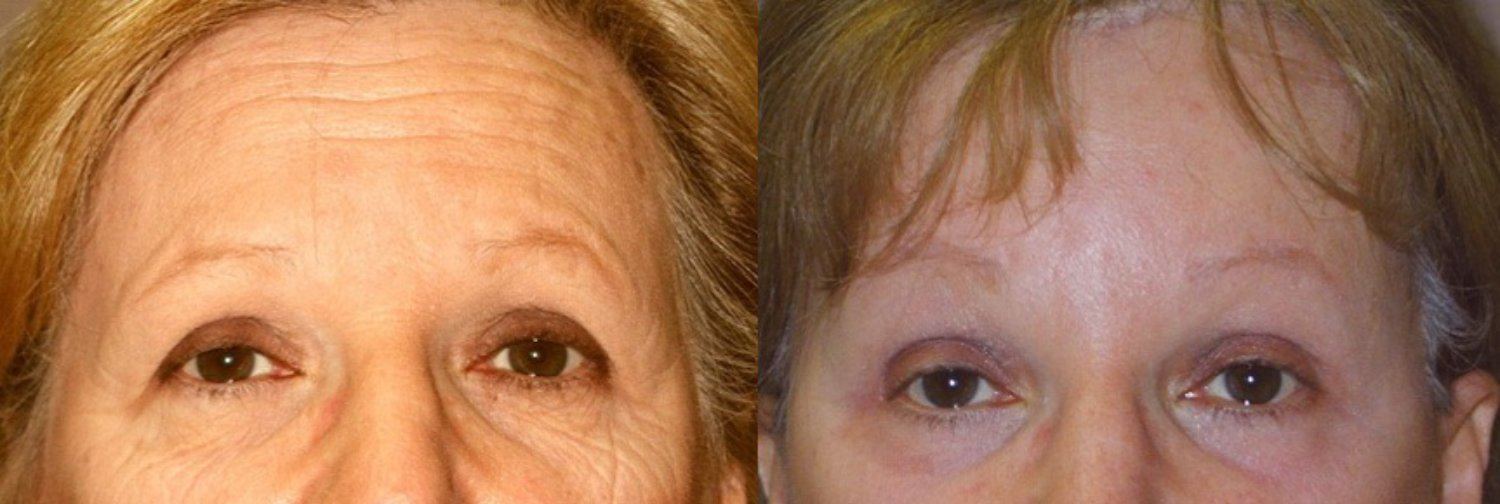 62-year-old facelift, browlift, hairline approach, upper & lower eyelids, chin implant, rhinoplasty subtle without fracture nasal domes, peel lower eyelids & perioral, 4 months