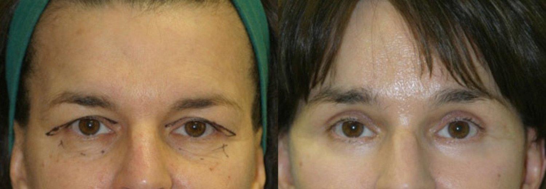 facelift, brow lift, upper & lower eyelids