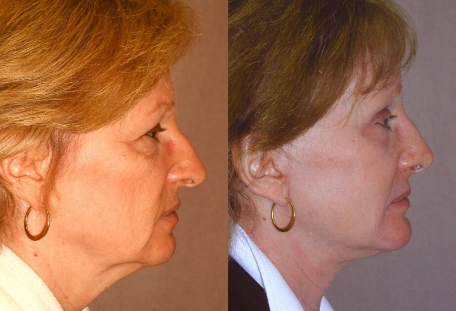 62-year-old facelift, browlift, hairline approach, upper & lower eyelids, chin implant, rhinoplasty subtle without fracture nasal domes, peel lower eyelids & perioral, 4 months, side