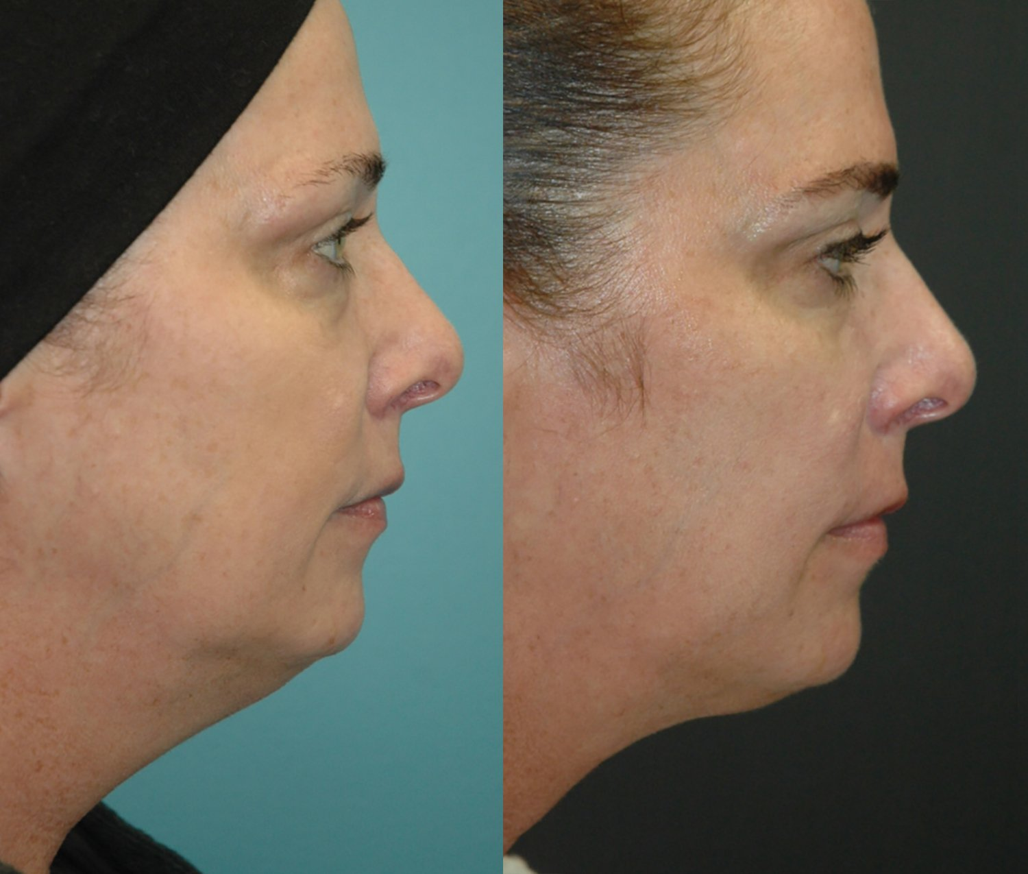 Facetite and Morpheus to neck and jawline, five months, side