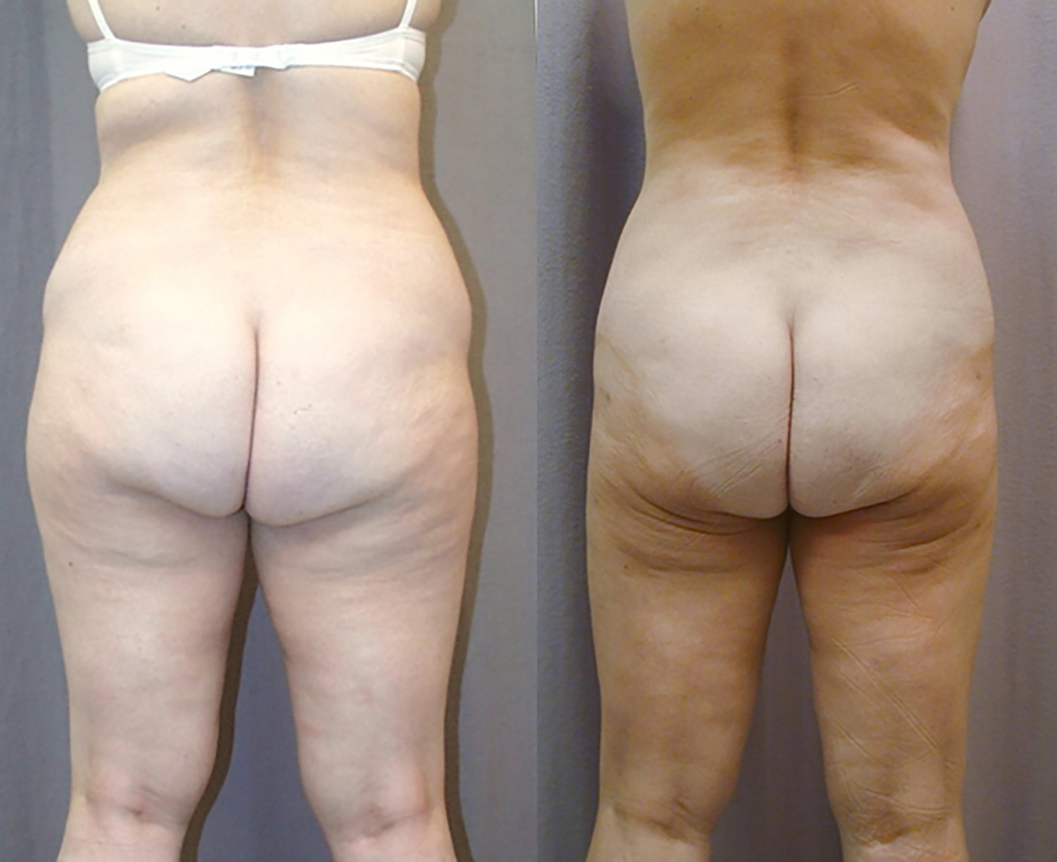Liposuction hips, bra fat, outer and inner thighs