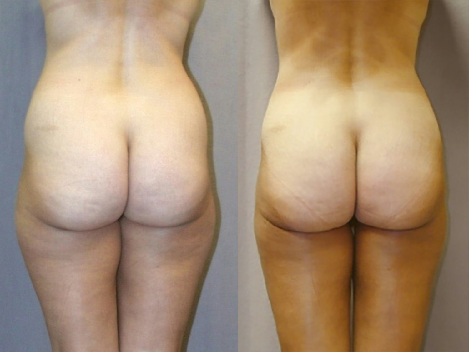 Liposuction hips outer and inner thighs, front