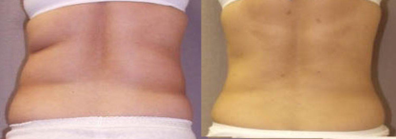 liposuction tummy and flanks, back
