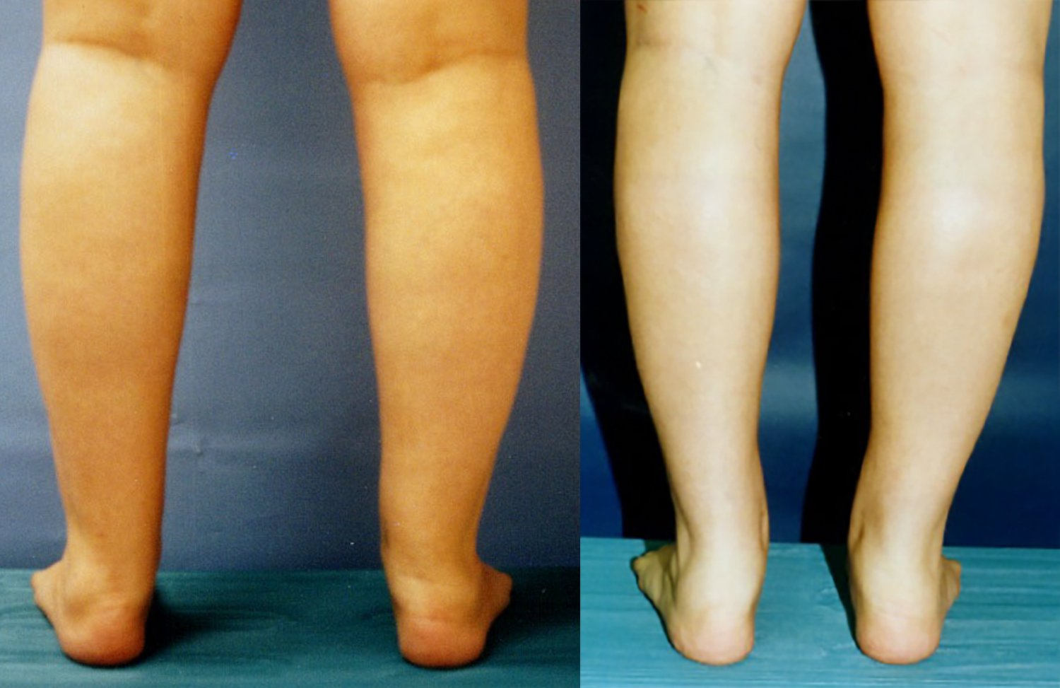 circumferential liposuction lower legs and ankles, 6 months, back