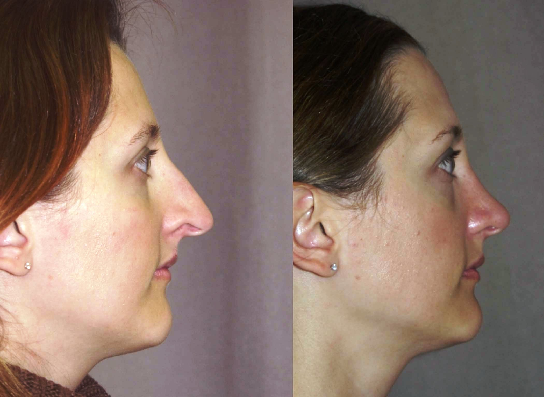 rhinoplasty, internal graft to nostril rim, side