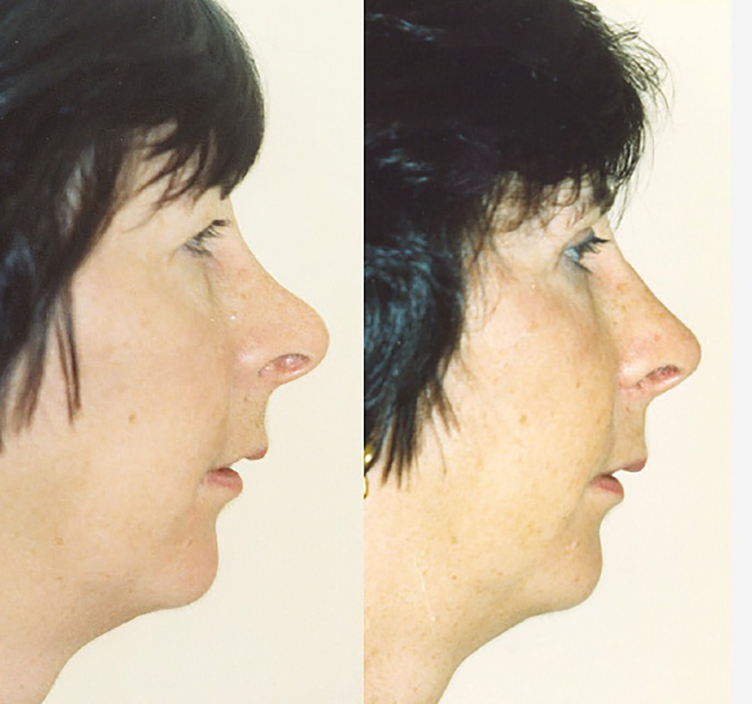secondary rhinoplasty, correction of previous surgery