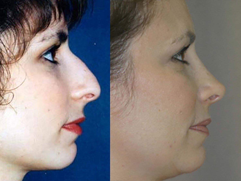 rhinoplasty 11 year follow-up, side