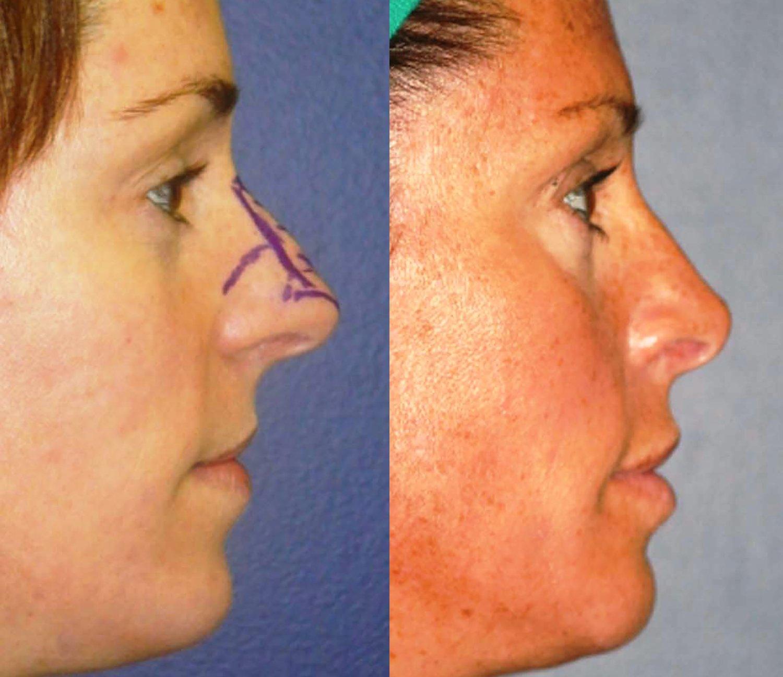rhinoplasty 8 years side