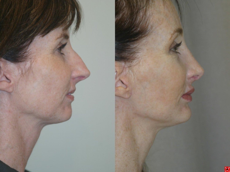 rhinoplasty, chin implant, browlift, facelift, side